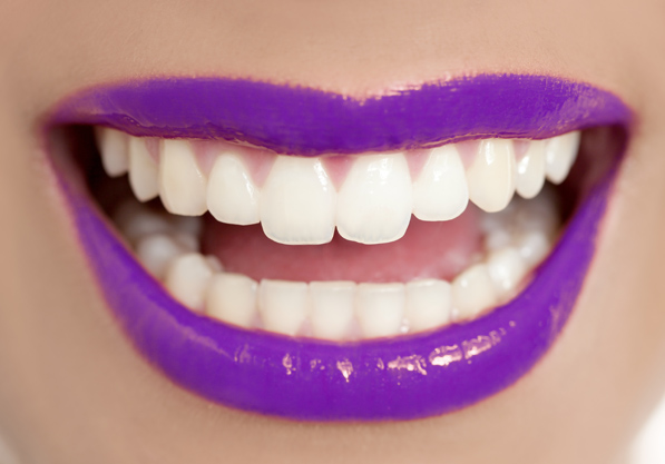 Wedding Teeth Whitening Kent
