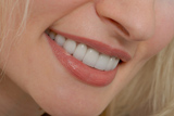 Beautiful smiles created by an Kent Dentist