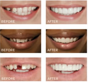 Cosmetic Dental Work by a Dentist in Kent ensures beautiful smiles